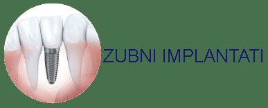 implantati-button